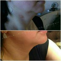 Овал лица через месяц после процедуры ультразвукового SMAS лифтинга. Эффект будет нарастать в течении еще двух месяцев Фото из архива врача Амирагаевой Гульнары.