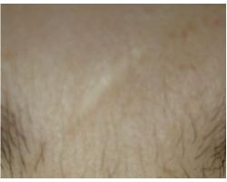 ДО: лазерное лечение гипотрофического рубца.до-после1ой процед-после 2ой проц