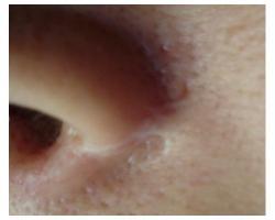 ДО: лазерное лечение рубца. до-после 1ой проц