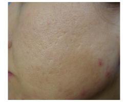 ПОСЛЕ: лазерное лечение рубцов постакне.до-после 1ойпроцедуры.  1