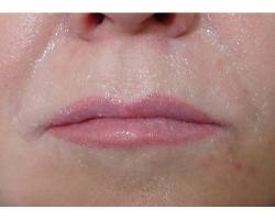 ДО:коррекция носогубных морщин филлером(гелем) на основе гиалуроновой кислоты