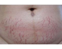 ДО: лазерное лечение стрий.до-после 1ой процедуры