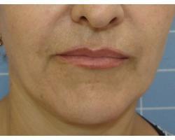 ПОСЛЕ: лазерное омоложение лица.до-через 2 года после 1ой процедуры