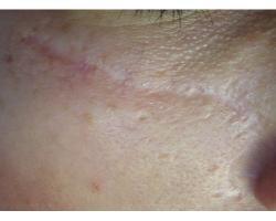 ДО: лазерное лечение посттравматического рубца.до-после 3х проц
