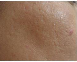 ПОСЛЕ: лазерное лечение рубцов постакне до-после2х проц