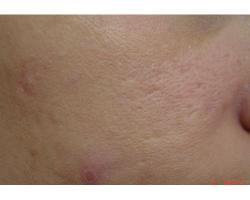 ПОСЛЕ: лазернре лечение рубцов постакне и расширенных пор.до-после 1ой проц