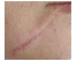 ПОСЛЕ: лазерное лечение рубца.до-после 2х проц